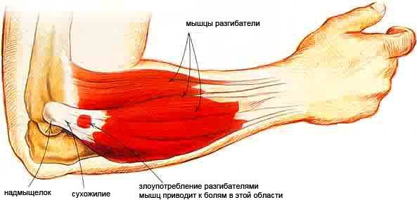 fájdalom a bokaízület deformáló artrózisával)