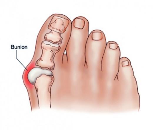 ízületi gyulladás a második lábujjon