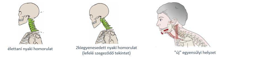 ásító ízületi fájdalom)