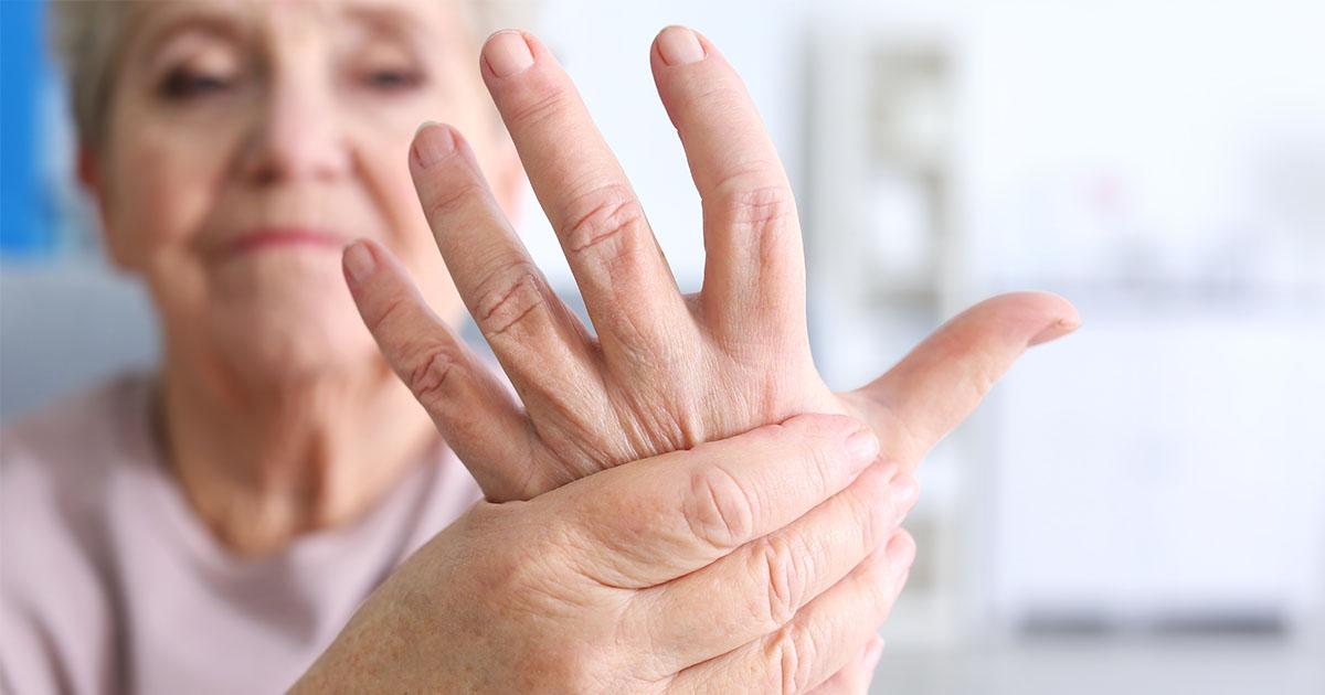 hogyan lehet kezelni az ujjak psoriasisos izületi gyulladását)