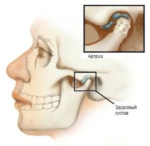 gyógyszerek artrózis ízületi kezelés homeopátiás kenőcs az oszteokondro-zishoz