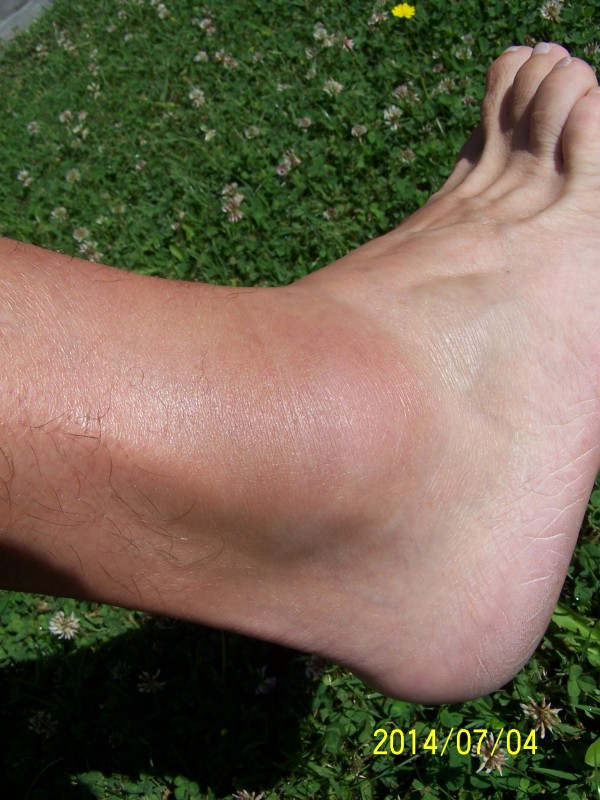 duzzadt bokaízület nincs fájdalom