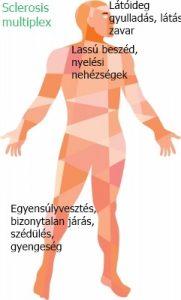 térd sclerosis kezelés)