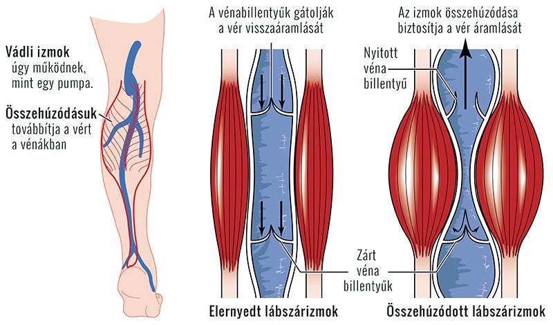 lábfájdalom az ízületek hajlításánál)