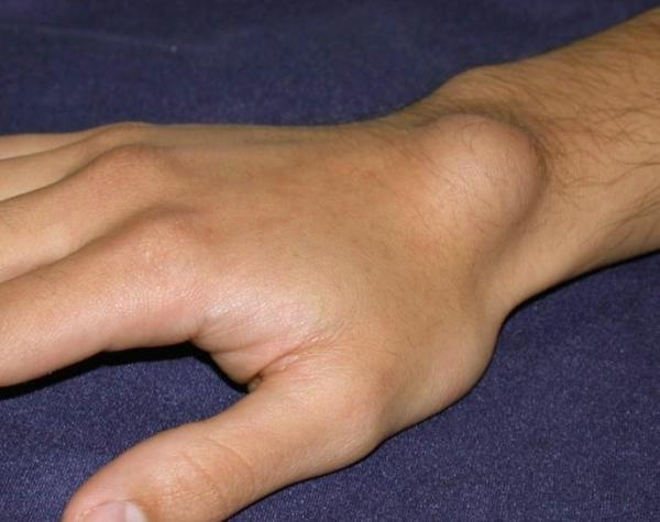 Szantál: hűsítő gyógyír kánikulában