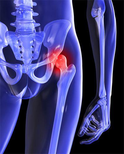 Csípőtorna, egyszerű gyakorlatok csípőfájdalom kezelésére. | sebinko.hu