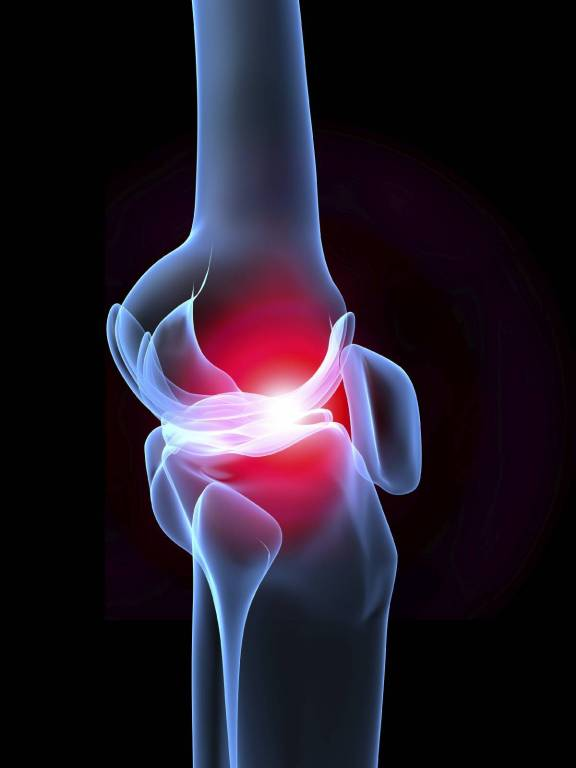 amely a csípőízületi gyulladást kezeli