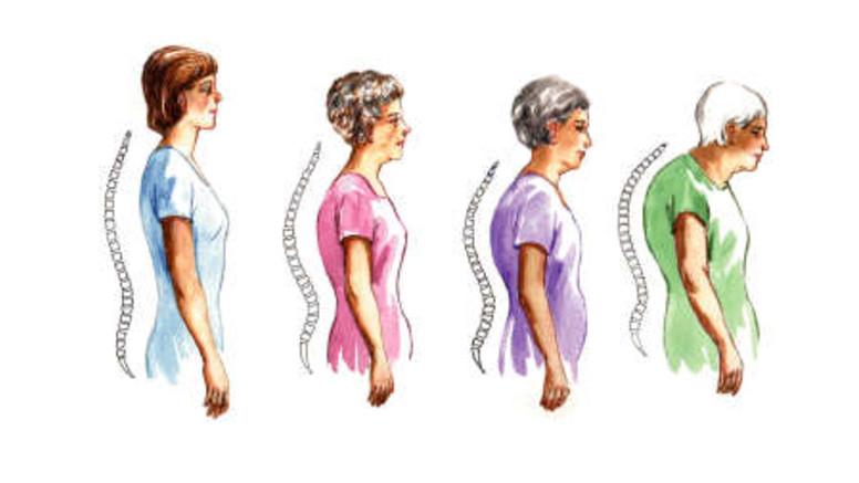gyógyszeres kezelés a csontritkulás ellen a