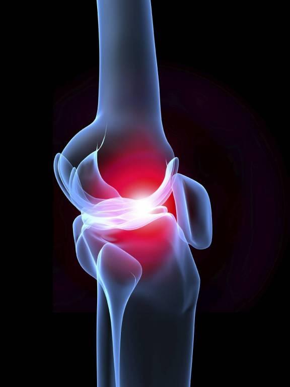 a csípő-coxarthrosis kezelés artrózisa torna ízületi gyulladás és ízületi gyulladás kezelésére