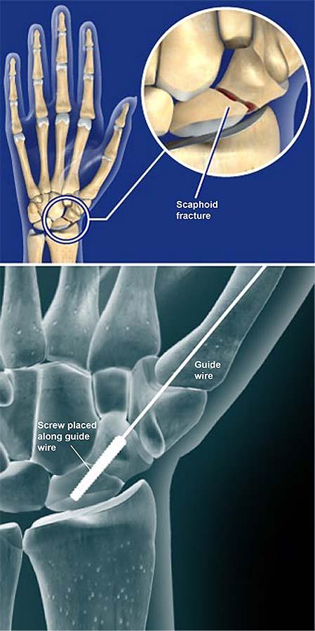 scaphoid scaphoid artrosis kezelése