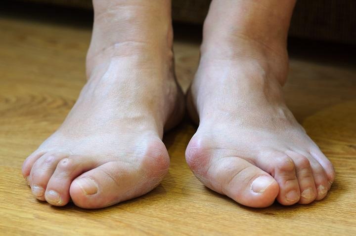 fájdalom a nagy lábujj ízülete közelében