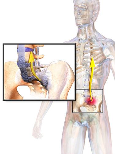 kezdeti térd artritisz