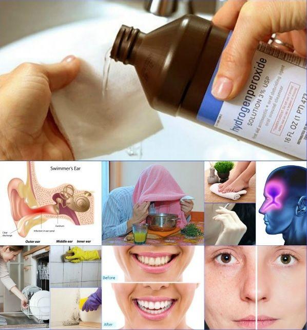 artrózisos kezelés hidrogén-peroxid