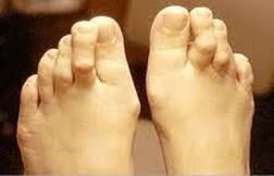 fáj a középső lábujj ízülete)