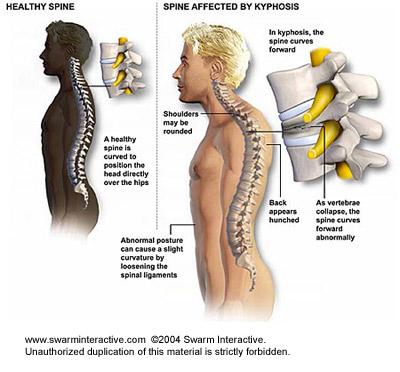 a kenőcs elnevezése a nyaki gerinc csontritkulásában