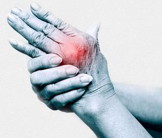 A 2. fokú térd osteoarthritis kezelése, a betegség okai és tünetei