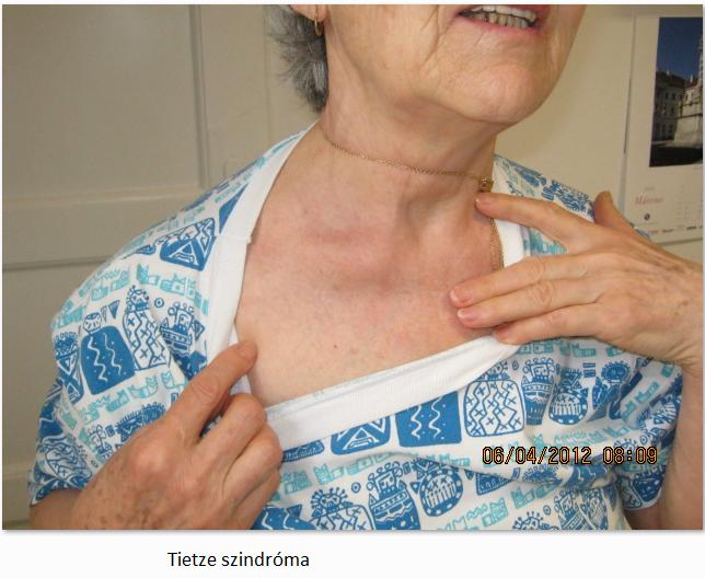 mellkasi ízületi gyulladás kezelésére