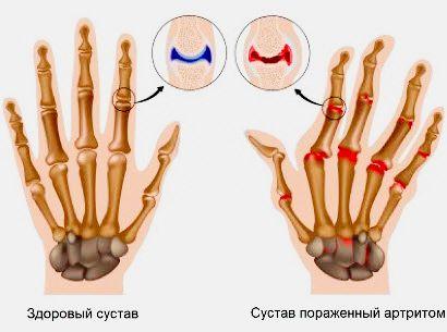 lézerterápia a vállízület artrózisában)