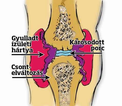 térdízület ízületi gyulladás gyógyszerei