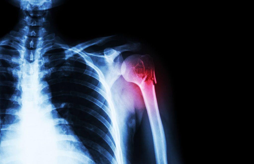 Vállízület - fájdalom a felkar emelésekor: okai, kezelése és megelőzése