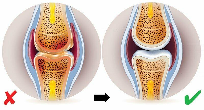 merevség és ízületi fájdalom a térdízület súlyos fájdalmának kezelése