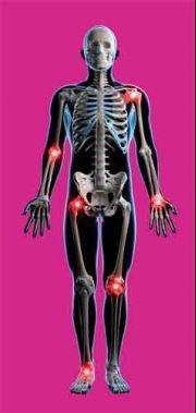 deformáló artrózis kezelésére szolgáló gyógyszer)