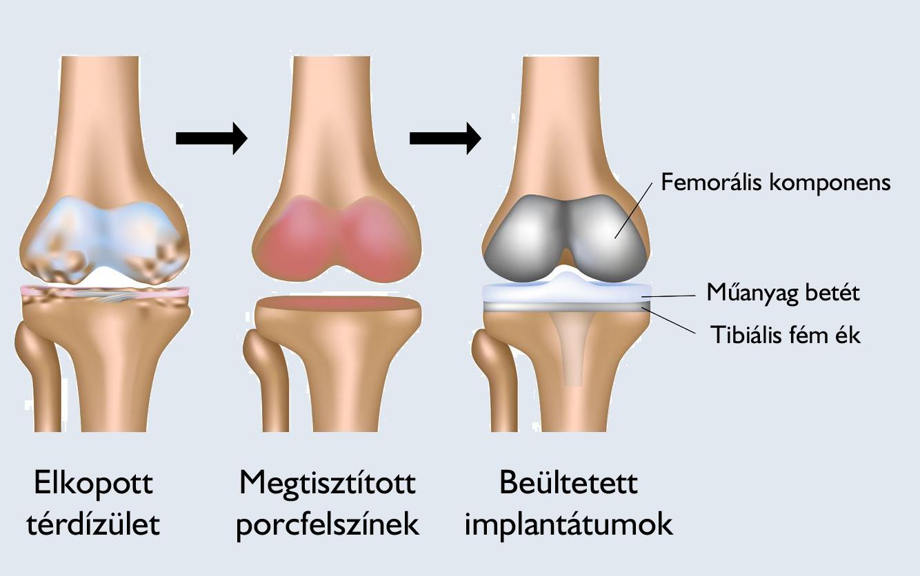 műtéti térdízületi kezelés)