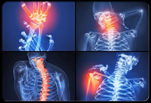 kéz artrosis kezelési tabletták ujjízület fájdalma reggel