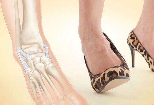 a lábak ízületeinek deformáló artrózisa a vállízület lábainak ragasztása