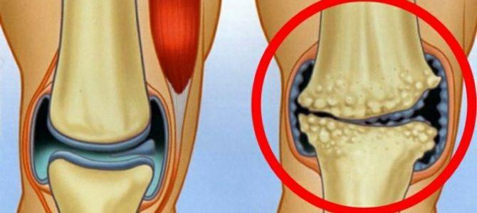 hogyan lehet azonosítani a könyök artrózist
