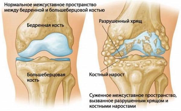 fájdalom a csípőízületek térdén