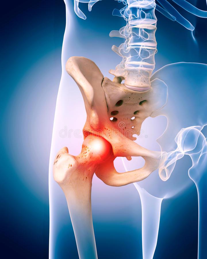 fájdalom a csípőízületben ülőkor térdfájdalomra krém