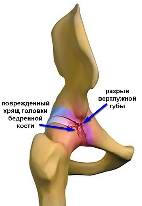 fájdalom a csípőízületben a térdig)