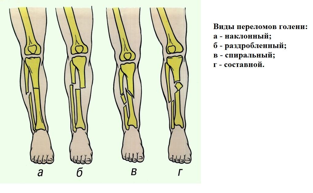 fájdalom a lábízületben keresztirányú lapos lábmal