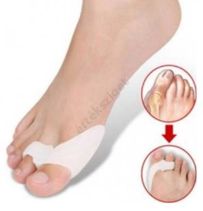 gyógyszer fájdalom a lábujjak ízületeiben térd osteonecrosis kezelése