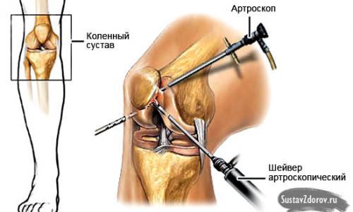 ízületi kezelés osteochondrosis)