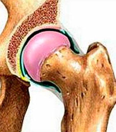 a csípőízület deformáló ízületi fokának kezelése 1-2)