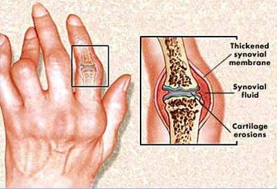 ízületi duzzanat fájdalom az ujjgyulladás gyulladásának kezelése