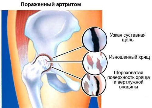 súlyos fájdalom a csípőízületben mi ez)