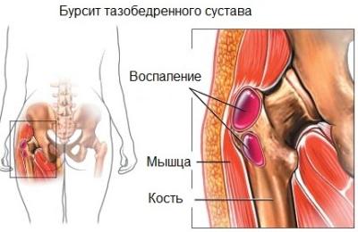 poszttraumás deformáló artrózis a könyökízületben