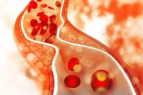 cukorbetegség szövődmények ízületi fájdalom