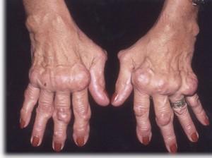 kéz a rheumatoid arthritis)