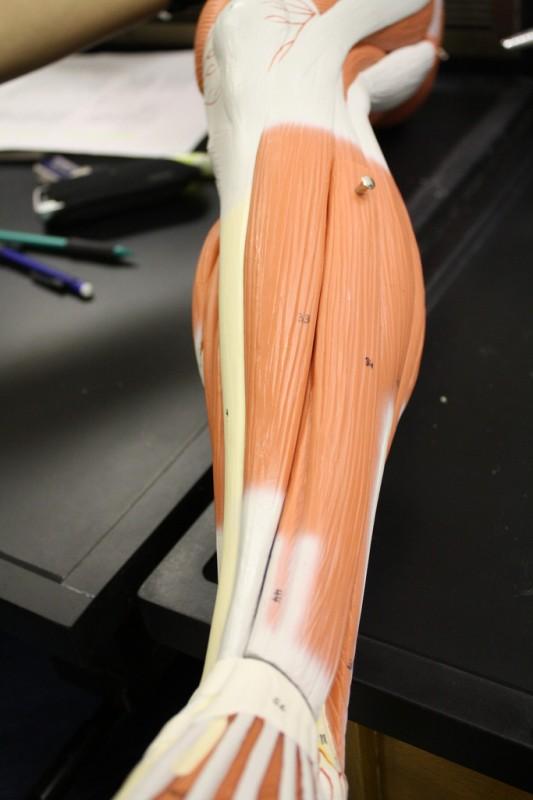 Tibiofibularis ízület osteoarthritise