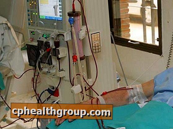 A dialízis okozta szívkárosodás MR-képe