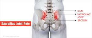 ízületek és gerinc fájdalmainak kezelése