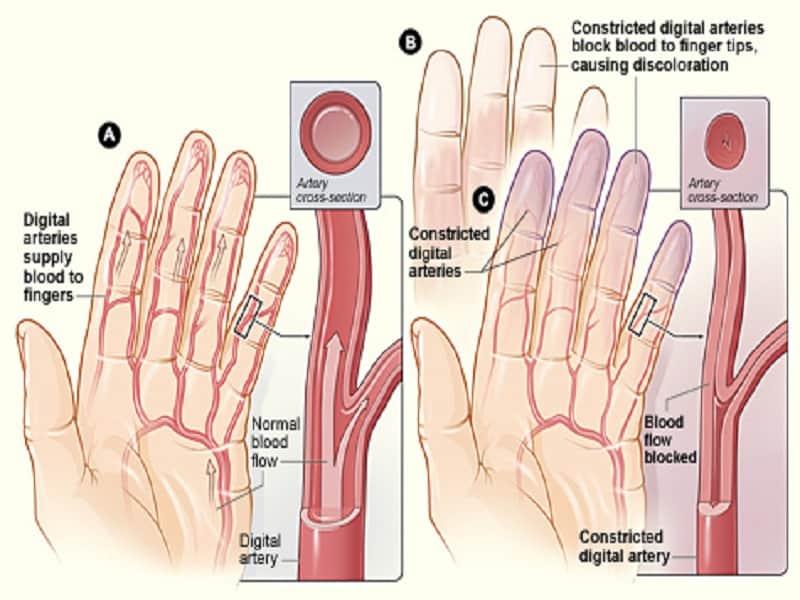 fájó fájdalom a lábak és a karok ízületeiben)