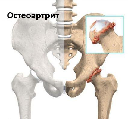 mi a deformáló artrózisa a csípőízületekben a csípőízület coxarthrosis nem szűnik meg