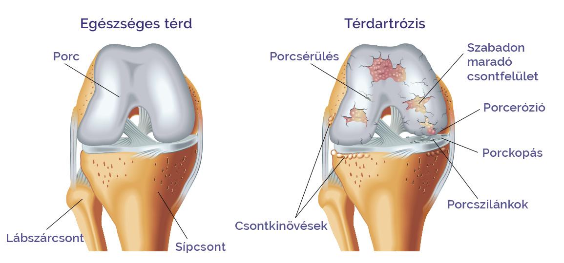 miért a térd artrózisa