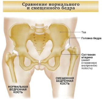 csípőízületek coxarthrosis kórtörténetét)