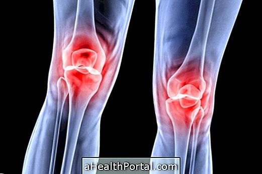 hogyan kezeljük a térdégést kenőcs ízületi fájdalom kámforolajhoz